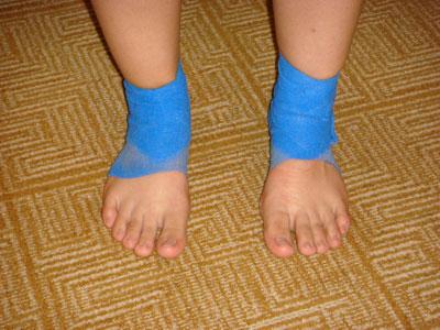 bandaged-feet